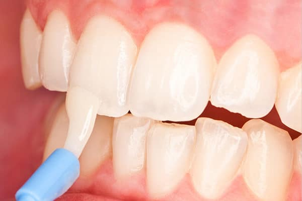 cropped fluoride treatment