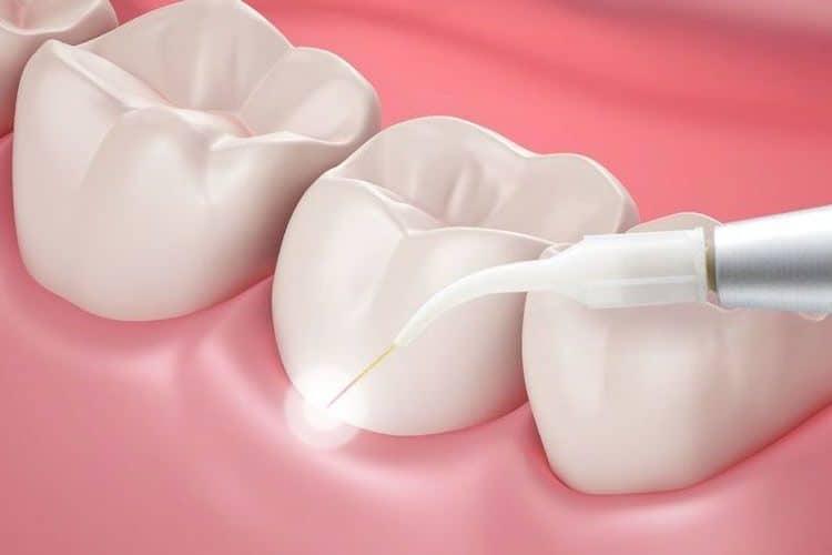 cropped Dental Laser